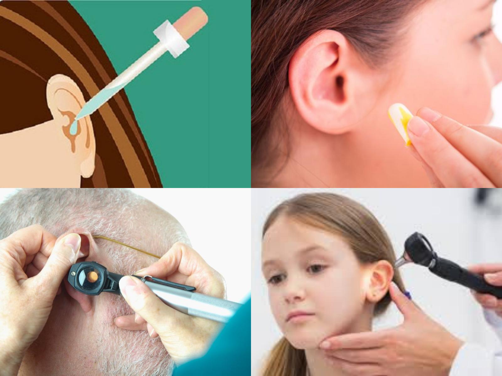 Cómo Destapar El Oído De Manera Natural Tips 2019