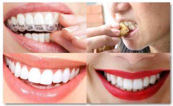 remedios para blanquear los dientes